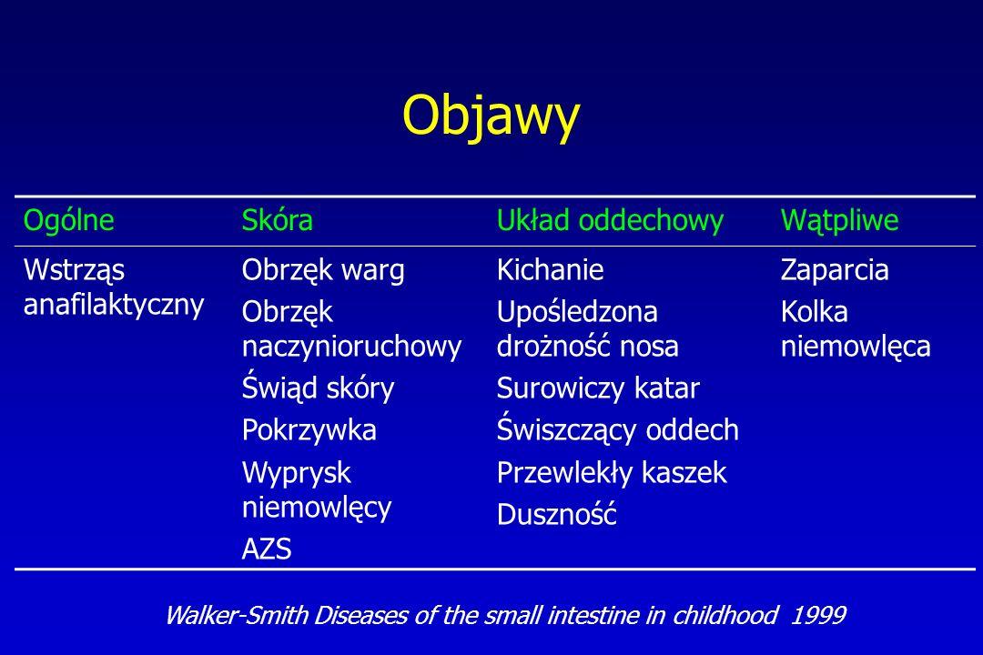 Profilaktyka alergii pokarmowej - wytyczne ESPGHAN/ESPACI Arch Dis Child 1999; 81: 80-84 Wyłączne karmienie piersią przez 4-6 miesięcy Pokarmy stałe najwcześniej od 5 mż Niemowlęta karmione sztucznie z tzw.
