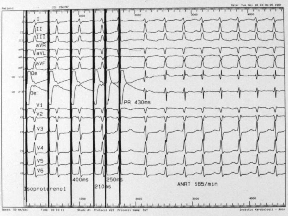 Migotanie przedsionków strategia leczenia: Czynniki decydujące o zwiększonym ryzyku nawrotu migotania przedsionków: czas trwania > 2 lat (?), zaawansowana wada zastawkowa serca, NYHA III lub IV (?), dysfunkcja lewej komory, powiększenie lewego przedsionka (> 60 mm?), wczesny nawrót migotania przedsionków.