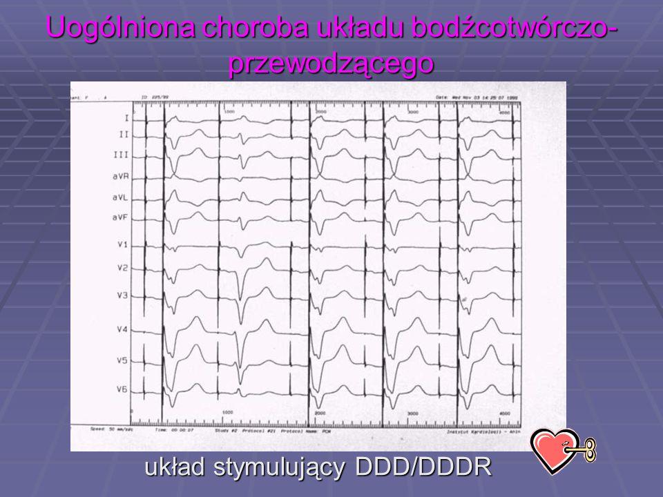 Uogólniona choroba układu bodźcotwórczo- przewodzącego układ stymulujący DDD/DDDR