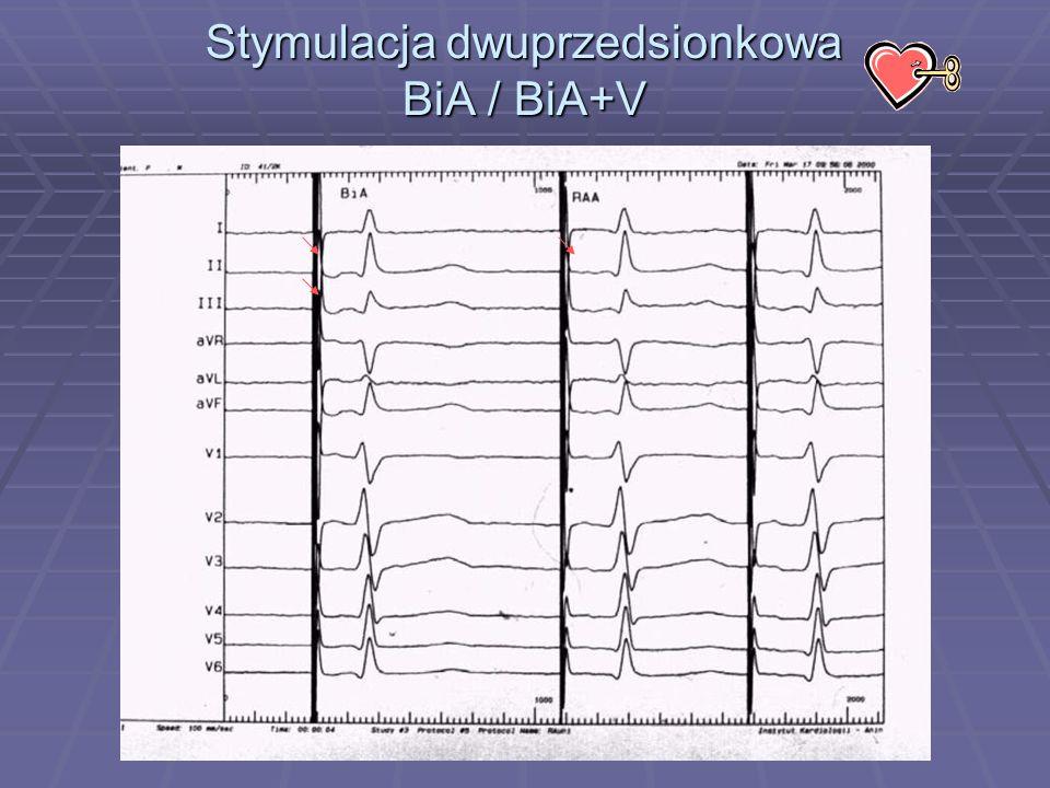 Stymulacja dwuprzedsionkowa BiA / BiA+V