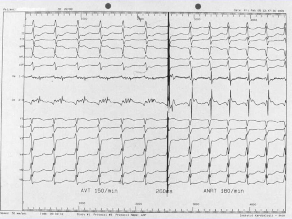 Stroke Prophylaxis for Cardioversion AF duration < 48 hrsAF duration > 48 hours* DCC (preferred) or appropriate antiarrhythmic  No stroke prophylaxis DCC or appropriate antiarrhythmic  Warfarin INR (2.0-3.0) for 4 weeks after Transesophageal echocardiogram (TEE) to evaluate for atrial clot Begin heparin immediately If TEE negative DCC or appropriate antiarrhythmic  within 24 hrs Warfarin INR (2.0-3.0) for 4 weeks after Warfarin INR (2.0-3.0) therapeutic for 3 weeks Migotanie przedsionków strategia leczenia: AHA/ACC/ESC Guidelines for AF management.