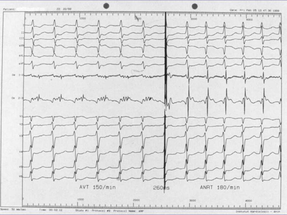 migotanie przedsionków objawy towarzyszące arytmii (-) kontrola częstości serca + leczenie p-zakrzepowe objawy towarzyszące arytmii (+) kontrola rytmu serca + leczenie p-zakrzepowe kardiowersja profilaktyka antyarytmiczna Consensus ESC Working Group of Arrhythmia, ESC Berlin 2002.