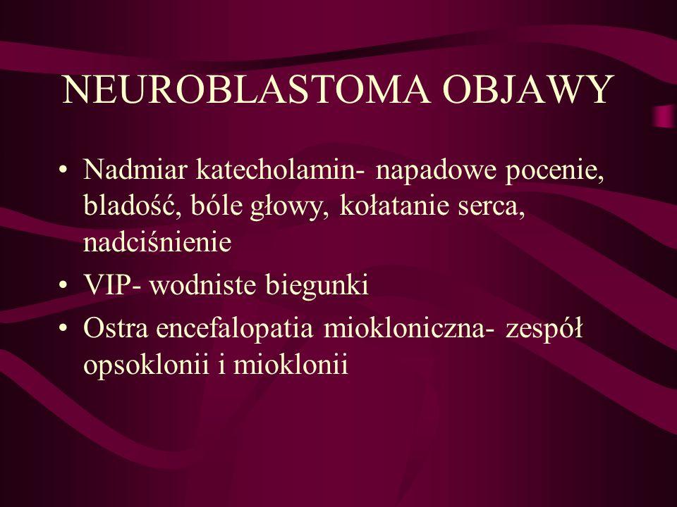 NEUROBLASTOMA OBJAWY Nadmiar katecholamin- napadowe pocenie, bladość, bóle głowy, kołatanie serca, nadciśnienie VIP- wodniste biegunki Ostra encefalopatia miokloniczna- zespół opsoklonii i mioklonii