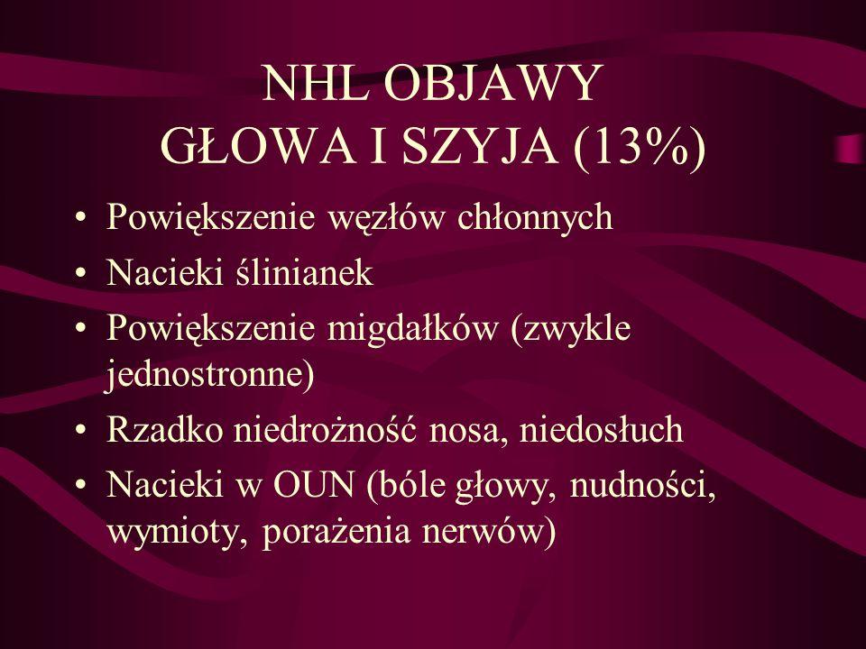 NHL OBJAWY GŁOWA I SZYJA (13%) Powiększenie węzłów chłonnych Nacieki ślinianek Powiększenie migdałków (zwykle jednostronne) Rzadko niedrożność nosa, niedosłuch Nacieki w OUN (bóle głowy, nudności, wymioty, porażenia nerwów)