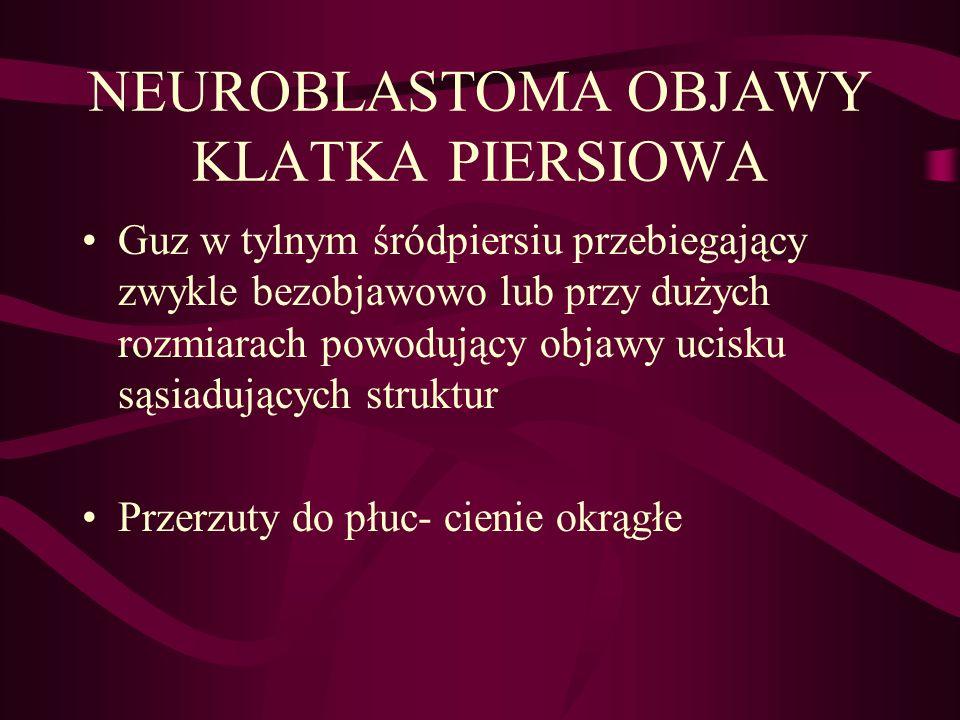 NEUROBLASTOMA OBJAWY KLATKA PIERSIOWA Guz w tylnym śródpiersiu przebiegający zwykle bezobjawowo lub przy dużych rozmiarach powodujący objawy ucisku są