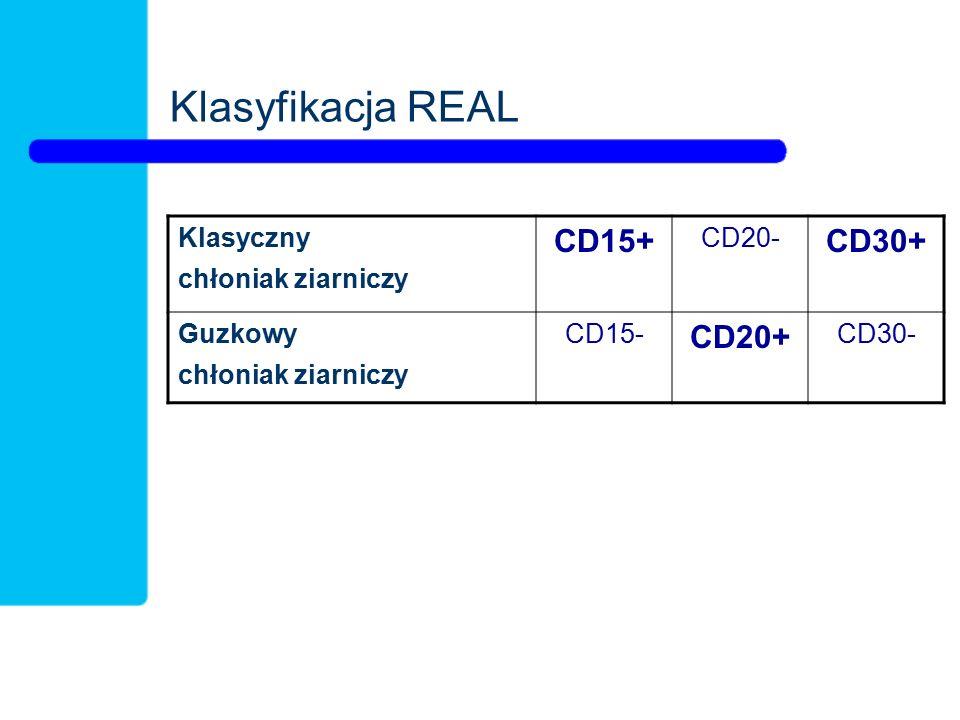 Klasyfikacja REAL Klasyczny chłoniak ziarniczy CD15+ CD20- CD30+ Guzkowy chłoniak ziarniczy CD15- CD20+ CD30-
