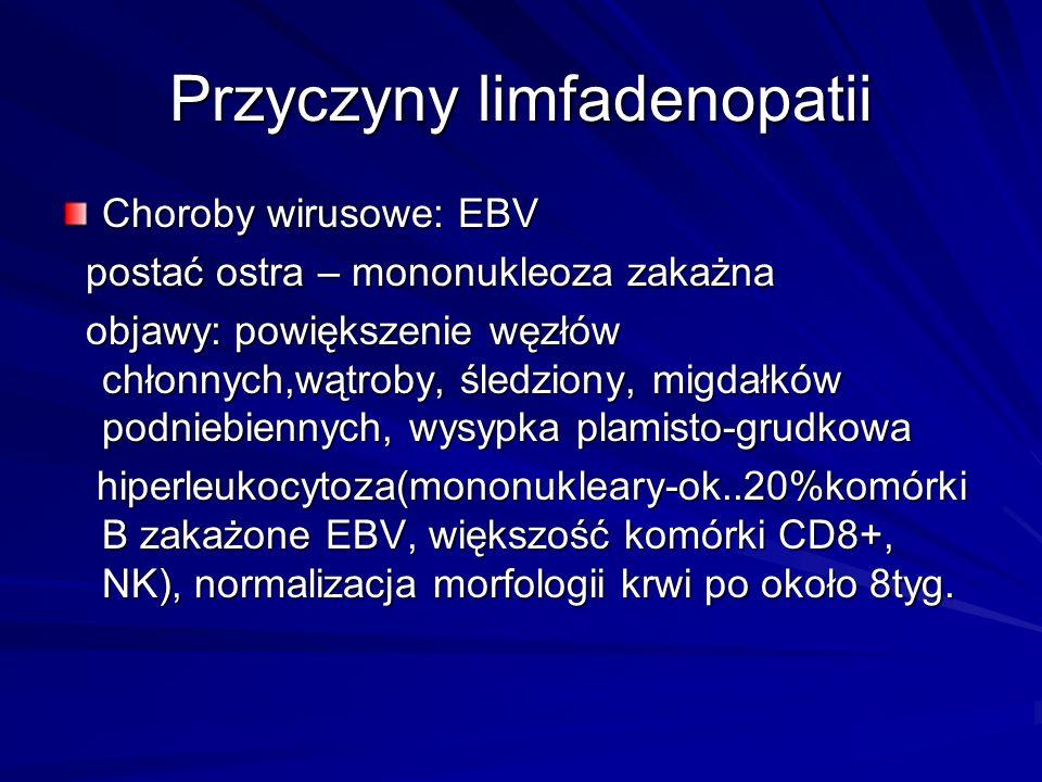 Przyczyny limfadenopatii Choroby wirusowe: EBV postać ostra – mononukleoza zakażna postać ostra – mononukleoza zakażna objawy: powiększenie węzłów chłonnych,wątroby, śledziony, migdałków podniebiennych, wysypka plamisto-grudkowa objawy: powiększenie węzłów chłonnych,wątroby, śledziony, migdałków podniebiennych, wysypka plamisto-grudkowa hiperleukocytoza(mononukleary-ok..20%komórki B zakażone EBV, większość komórki CD8+, NK), normalizacja morfologii krwi po około 8tyg.