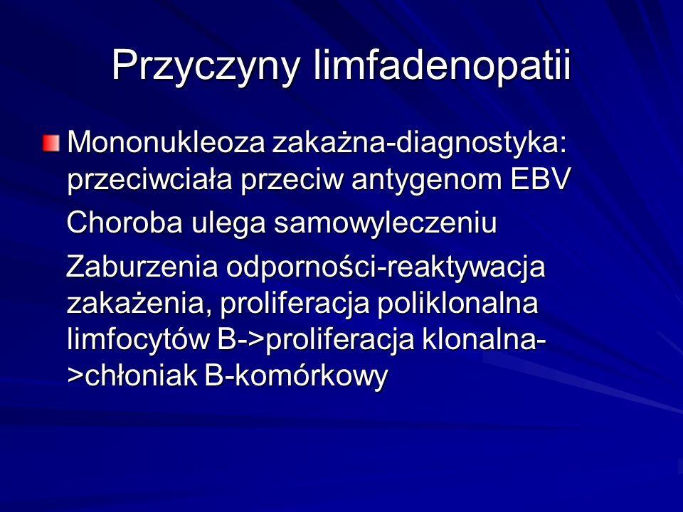 Przyczyny limfadenopatii Mononukleoza zakażna-diagnostyka: przeciwciała przeciw antygenom EBV Choroba ulega samowyleczeniu Choroba ulega samowyleczeniu Zaburzenia odporności-reaktywacja zakażenia, proliferacja poliklonalna limfocytów B->proliferacja klonalna- >chłoniak B-komórkowy Zaburzenia odporności-reaktywacja zakażenia, proliferacja poliklonalna limfocytów B->proliferacja klonalna- >chłoniak B-komórkowy