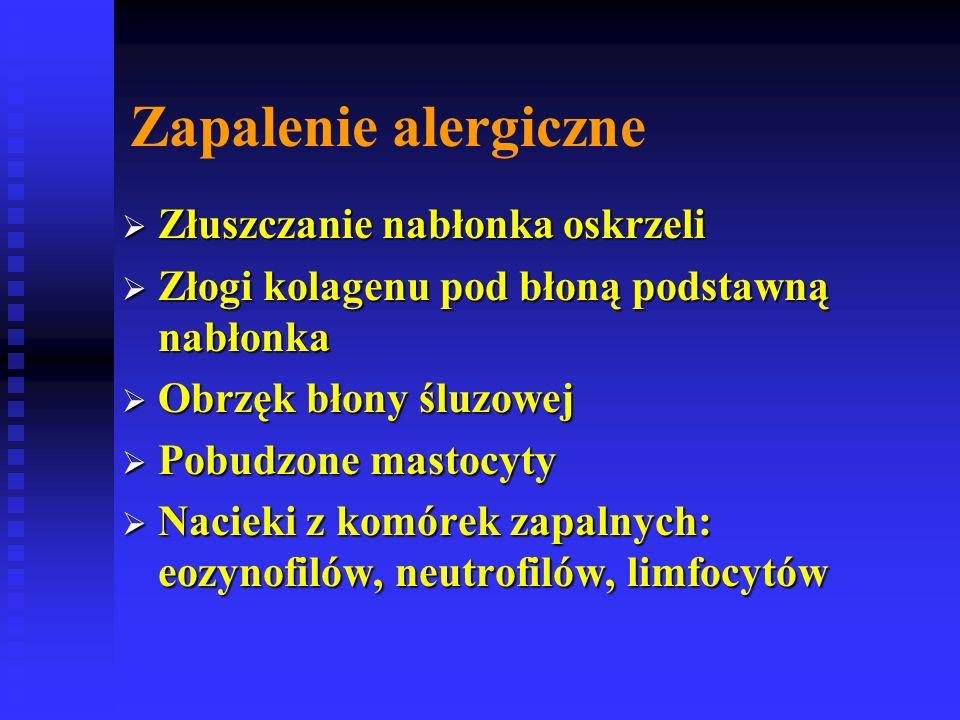 Zapalenie alergiczne  Złuszczanie nabłonka oskrzeli  Złogi kolagenu pod błoną podstawną nabłonka  Obrzęk błony śluzowej  Pobudzone mastocyty  Nacieki z komórek zapalnych: eozynofilów, neutrofilów, limfocytów