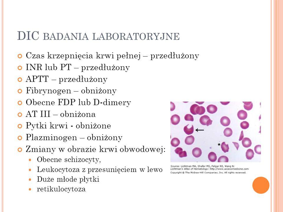 DIC BADANIA LABORATORYJNE Czas krzepnięcia krwi pełnej – przedłużony INR lub PT – przedłużony APTT – przedłużony Fibrynogen – obniżony Obecne FDP lub