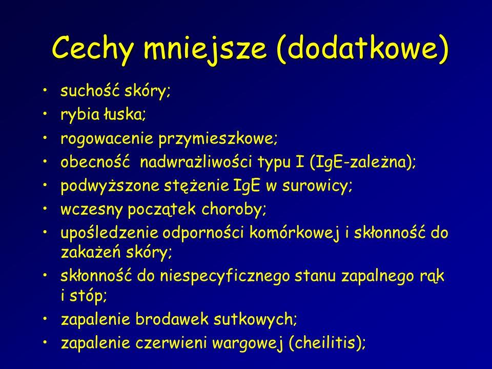 Cechy mniejsze (dodatkowe) suchość skóry; rybia łuska; rogowacenie przymieszkowe; obecność nadwrażliwości typu I (IgE-zależna); podwyższone stężenie IgE w surowicy; wczesny początek choroby; upośledzenie odporności komórkowej i skłonność do zakażeń skóry; skłonność do niespecyficznego stanu zapalnego rąk i stóp; zapalenie brodawek sutkowych; zapalenie czerwieni wargowej (cheilitis);
