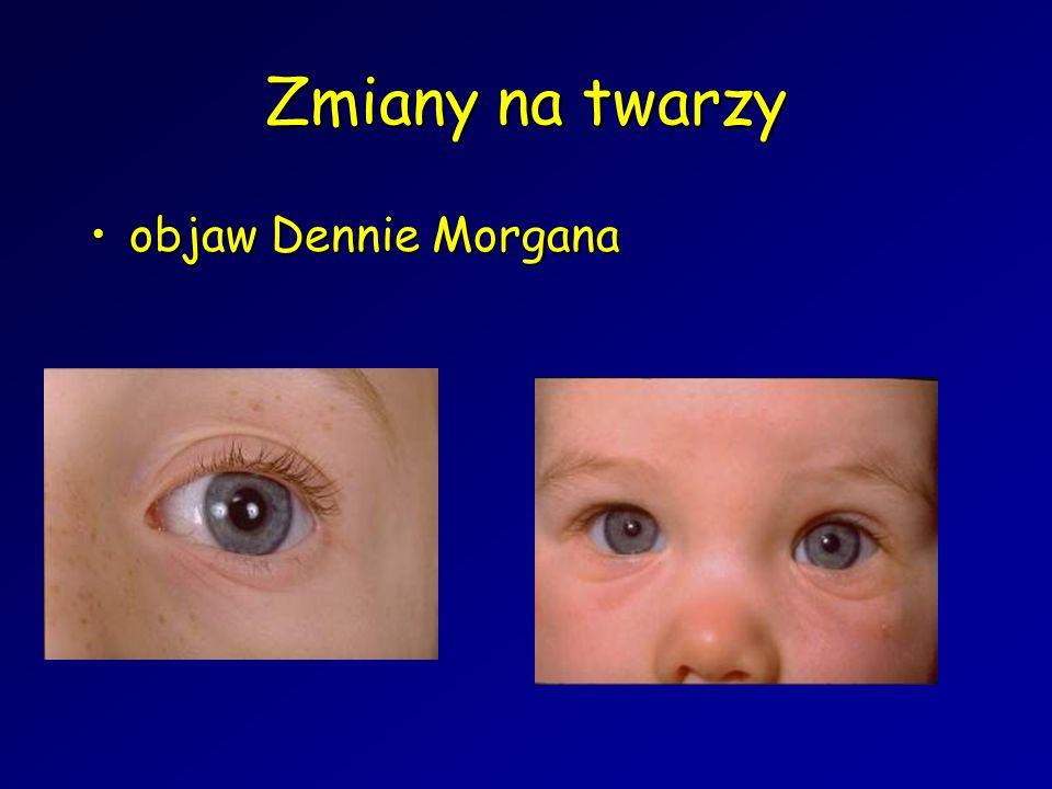 Zmiany na twarzy objaw Dennie Morganaobjaw Dennie Morgana