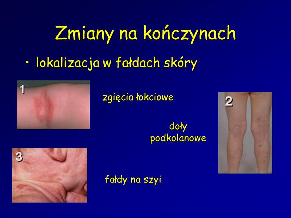Zmiany na kończynach lokalizacja w fałdach skórylokalizacja w fałdach skóry zgięcia łokciowe doły podkolanowe fałdy na szyi