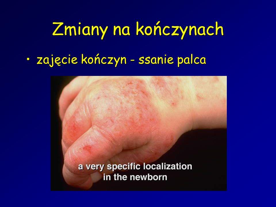 Zmiany na kończynach zajęcie kończyn - ssanie palcazajęcie kończyn - ssanie palca