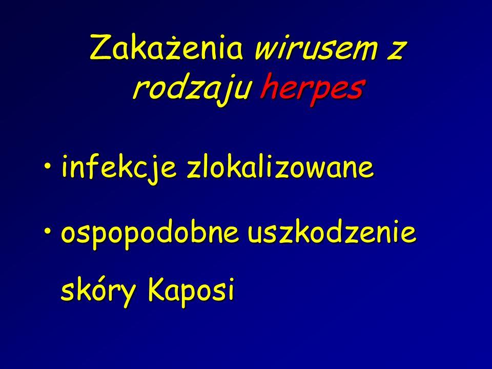 infekcje zlokalizowaneinfekcje zlokalizowane ospopodobne uszkodzenie skóry Kaposiospopodobne uszkodzenie skóry Kaposi Zakażenia wirusem z rodzaju herp