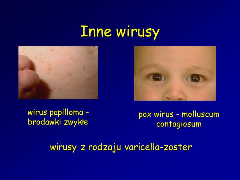 Inne wirusy wirusy z rodzaju varicella-zoster wirus papilloma - brodawki zwykłe pox wirus - molluscum contagiosum