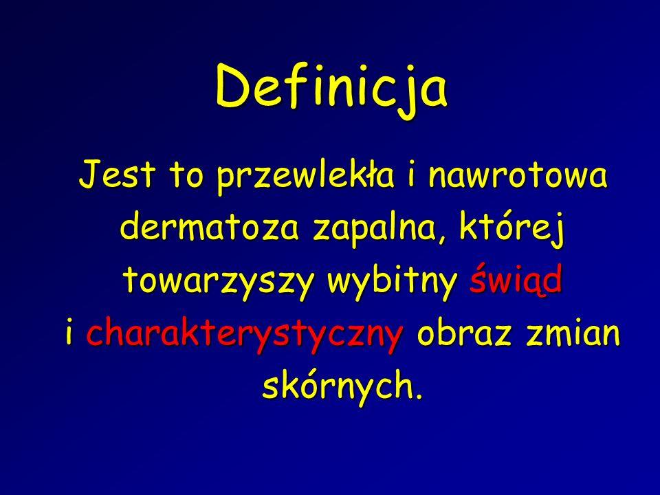 Definicja Jest to przewlekła i nawrotowa dermatoza zapalna, której towarzyszy wybitny świąd i charakterystyczny obraz zmian skórnych.