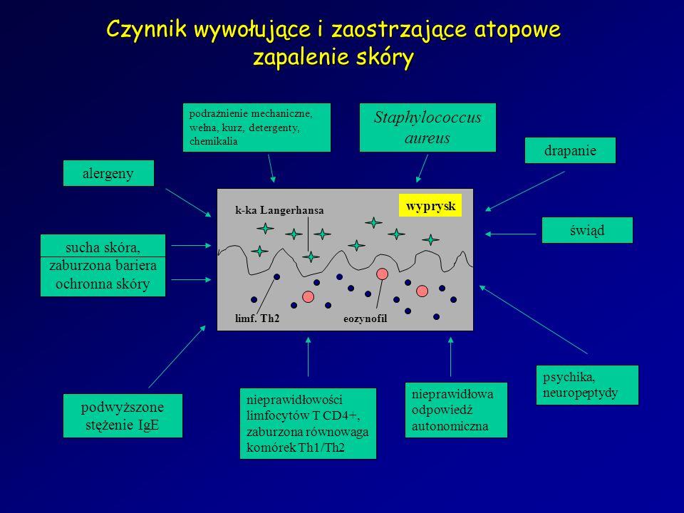 eozynofillimf. Th2 k-ka Langerhansa wyprysk świąd nieprawidłowości limfocytów T CD4+, zaburzona równowaga komórek Th1/Th2 sucha skóra, zaburzona barie