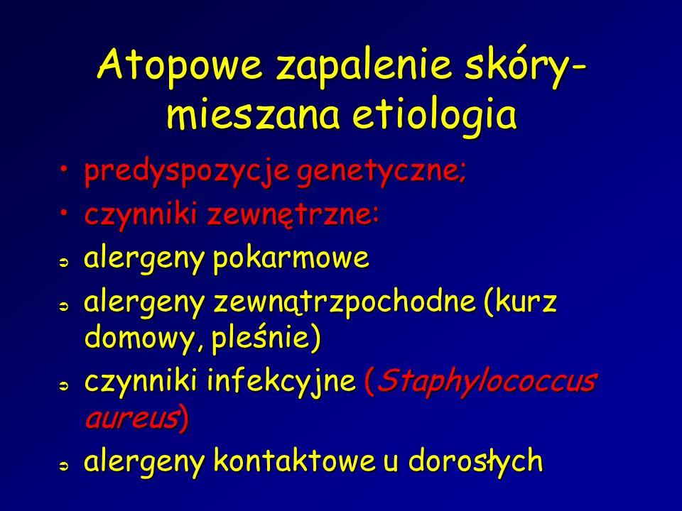 Atopowe zapalenie skóry- mieszana etiologia predyspozycje genetyczne;predyspozycje genetyczne; czynniki zewnętrzne:czynniki zewnętrzne:  alergeny pokarmowe  alergeny zewnątrzpochodne (kurz domowy, pleśnie)  czynniki infekcyjne (Staphylococcus aureus)  alergeny kontaktowe u dorosłych