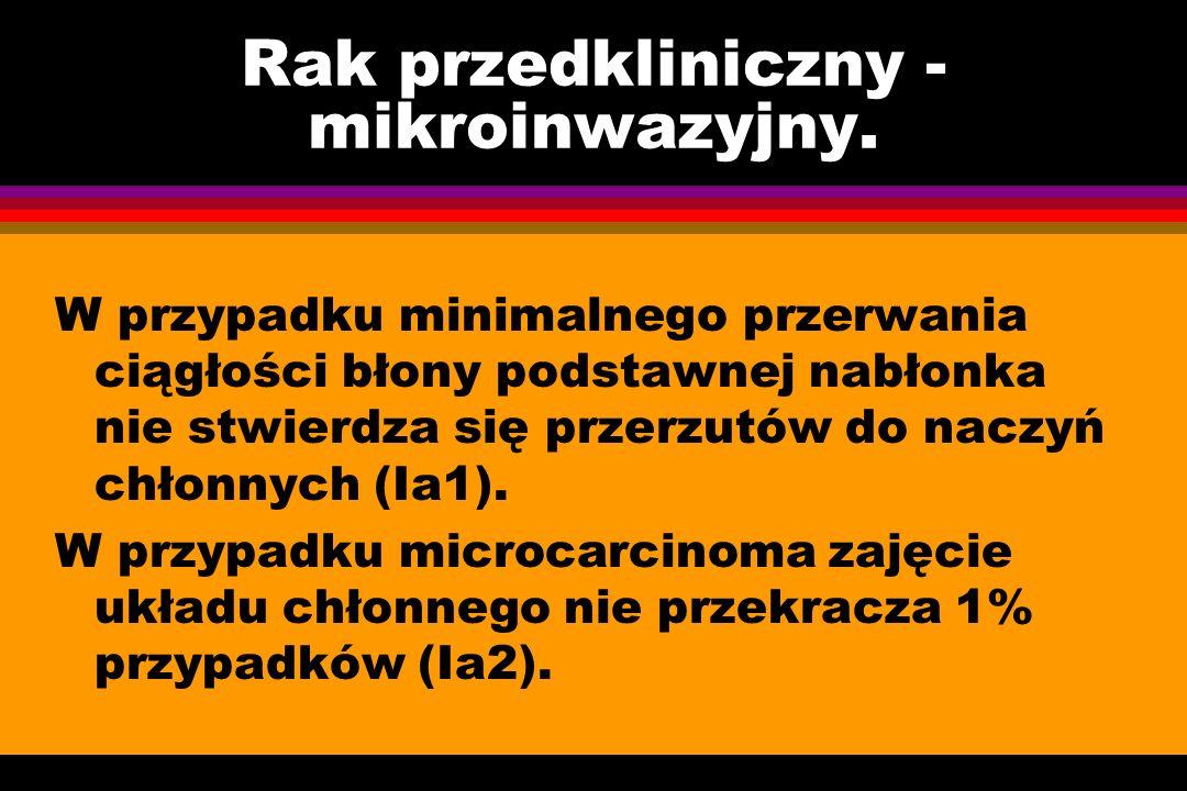 Rak przedkliniczny - mikroinwazyjny. W przypadku minimalnego przerwania ciągłości błony podstawnej nabłonka nie stwierdza się przerzutów do naczyń chł