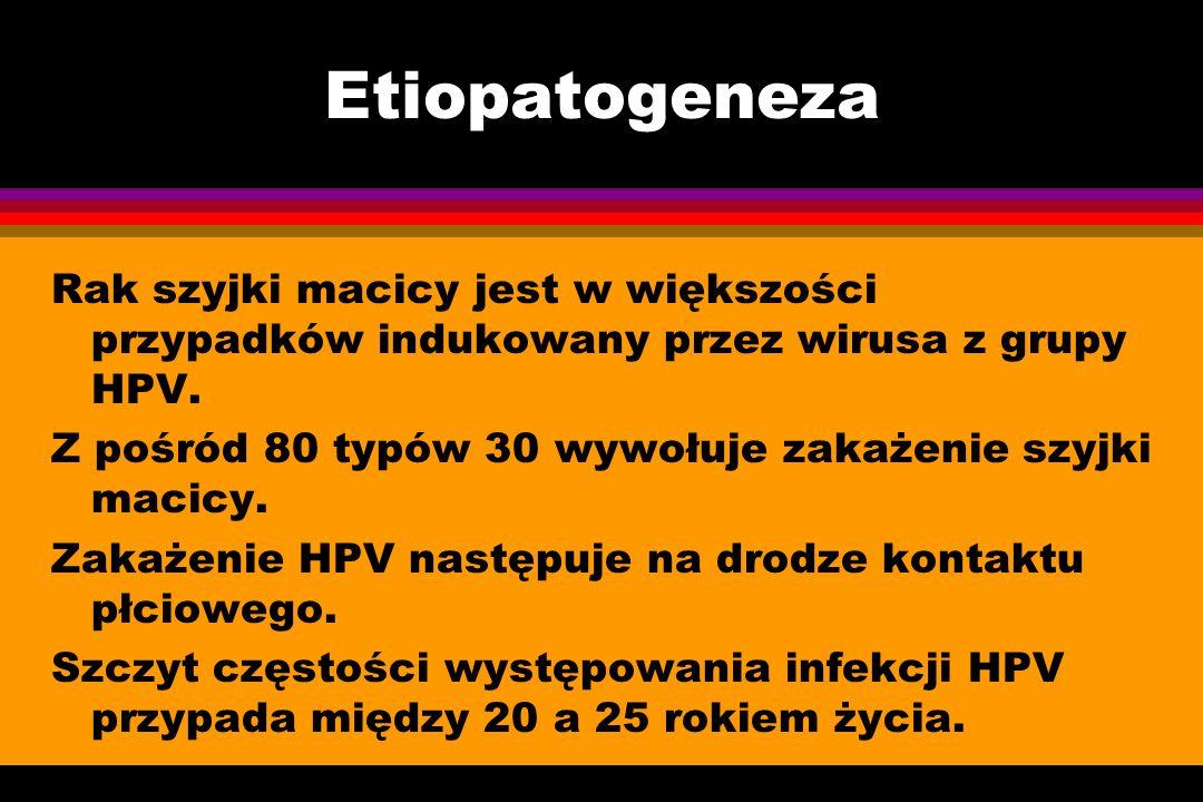 Etiopatogeneza Rak szyjki macicy jest w większości przypadków indukowany przez wirusa z grupy HPV. Z pośród 80 typów 30 wywołuje zakażenie szyjki maci