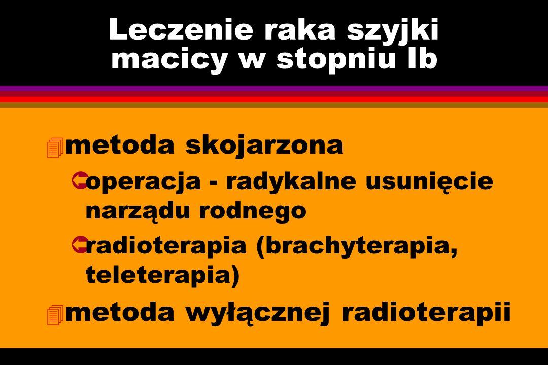 Leczenie raka szyjki macicy w stopniu Ib 4 metoda skojarzona Ûoperacja - radykalne usunięcie narządu rodnego Ûradioterapia (brachyterapia, teleterapia