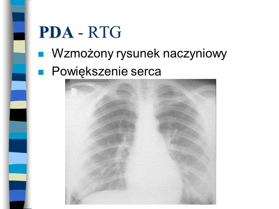 PDA PDA - RTG n Wzmożony rysunek naczyniowy n Powiększenie serca