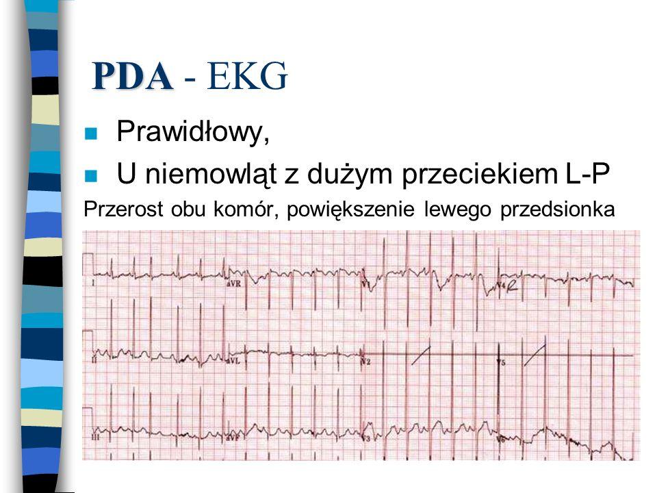 PDA PDA - EKG n Prawidłowy, n U niemowląt z dużym przeciekiem L-P Przerost obu komór, powiększenie lewego przedsionka
