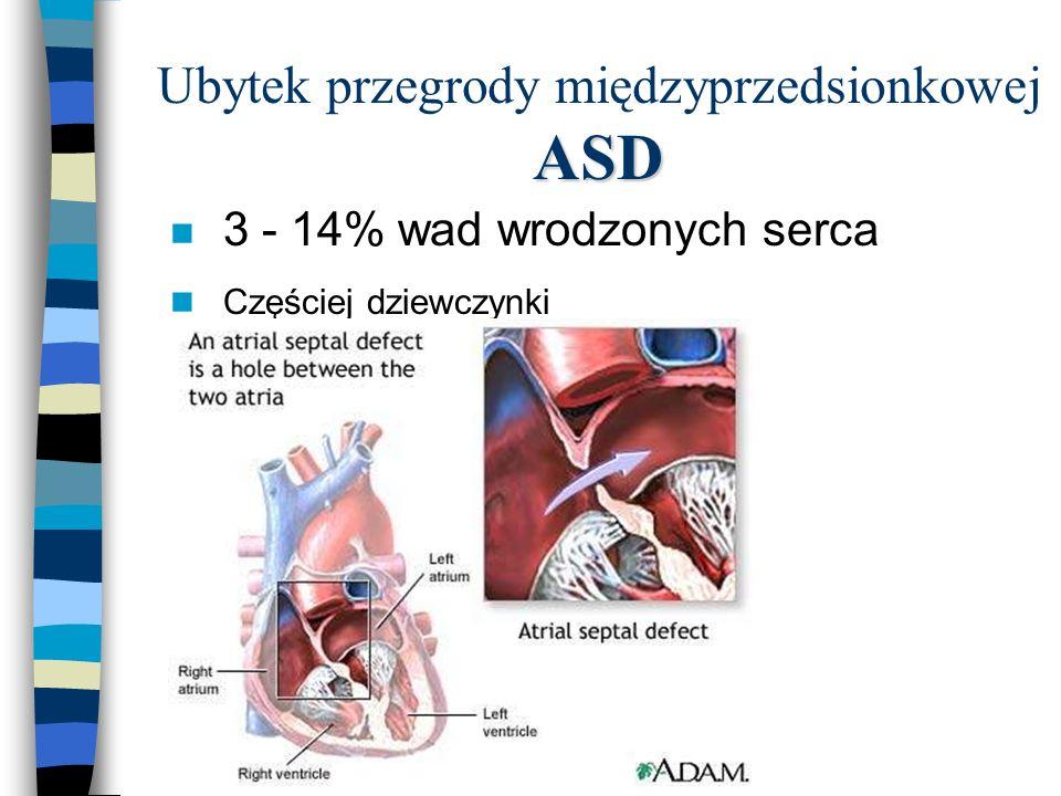ASD Ubytek przegrody międzyprzedsionkowej ASD n 3 - 14% wad wrodzonych serca n Częściej dziewczynki