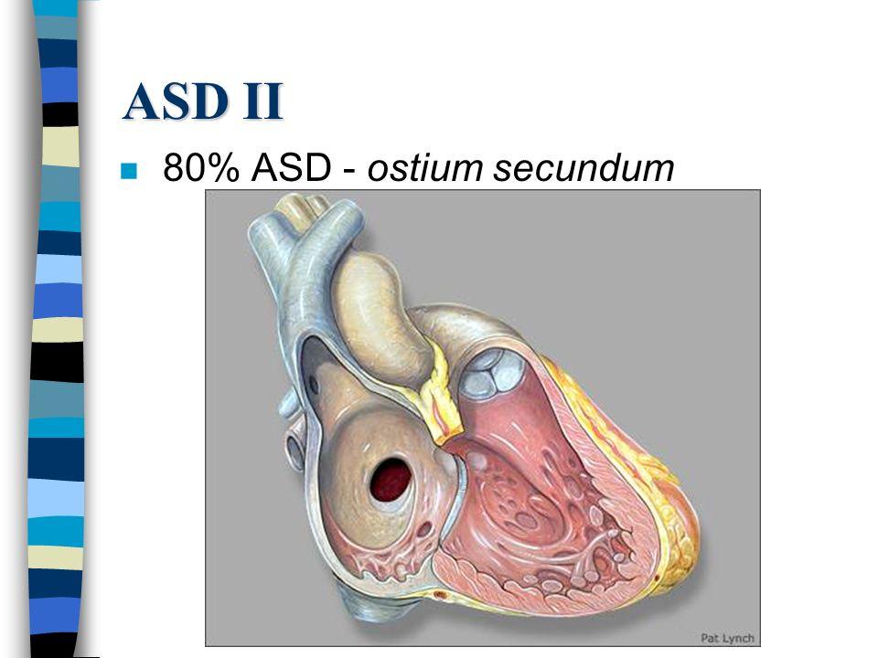 ASD II n 80% ASD - ostium secundum