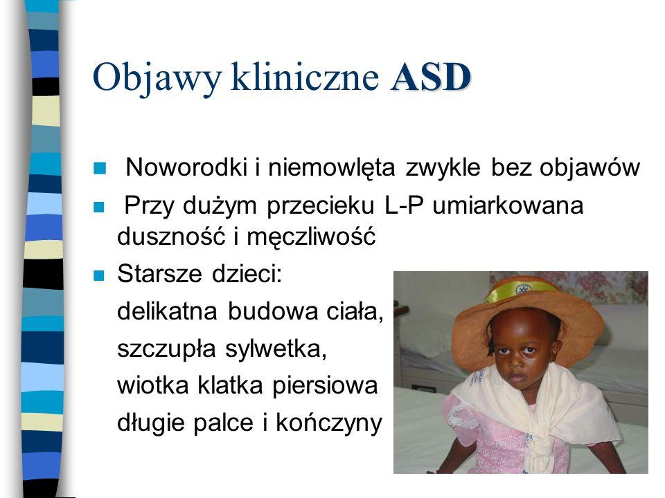 ASD Objawy kliniczne ASD n Noworodki i niemowlęta zwykle bez objawów n Przy dużym przecieku L-P umiarkowana duszność i męczliwość n Starsze dzieci: de