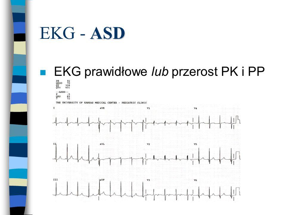 ASD EKG - ASD n EKG prawidłowe lub przerost PK i PP