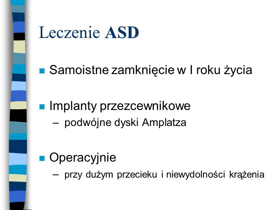 ASD Leczenie ASD n Samoistne zamknięcie w I roku życia n Implanty przezcewnikowe – podwójne dyski Amplatza n Operacyjnie – przy dużym przecieku i niew