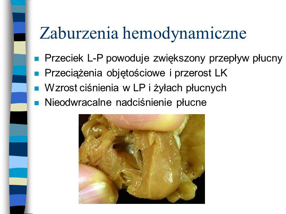 Zaburzenia hemodynamiczne n Przeciek L-P powoduje zwiększony przepływ płucny n Przeciążenia objętościowe i przerost LK n Wzrost ciśnienia w LP i żyłac