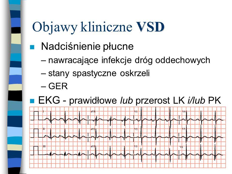 VSD Objawy kliniczne VSD n Nadciśnienie płucne –nawracające infekcje dróg oddechowych –stany spastyczne oskrzeli –GER n EKG - prawidłowe lub przerost