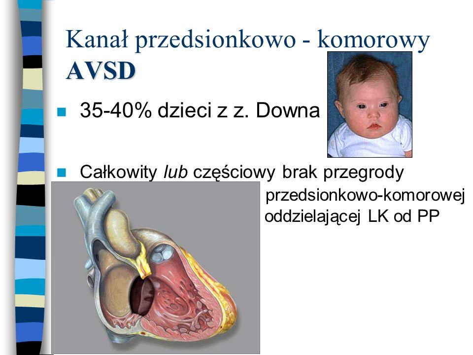 AVSD Kanał przedsionkowo - komorowy AVSD n 35-40% dzieci z z. Downa n Całkowity lub częściowy brak przegrody przedsionkowo-komorowej oddzielającej LK