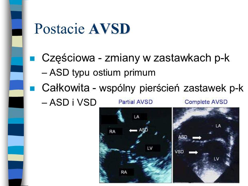 AVSD Postacie AVSD n Częściowa - zmiany w zastawkach p-k –ASD typu ostium primum n Całkowita - wspólny pierścień zastawek p-k –ASD i VSD