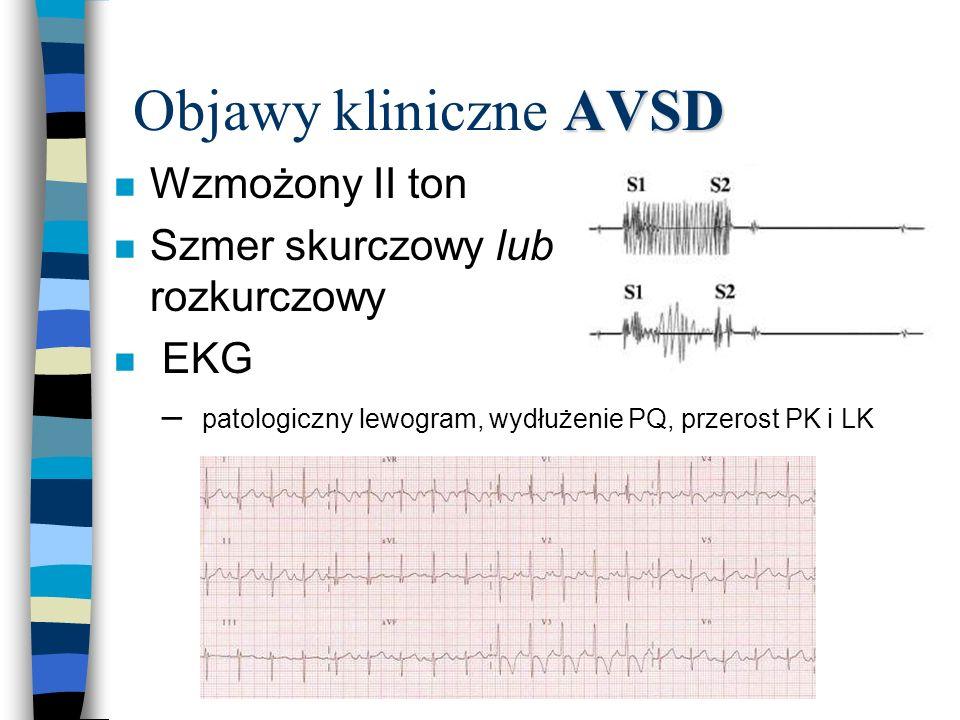 AVSD Objawy kliniczne AVSD n Wzmożony II ton n Szmer skurczowy lub rozkurczowy n EKG – patologiczny lewogram, wydłużenie PQ, przerost PK i LK