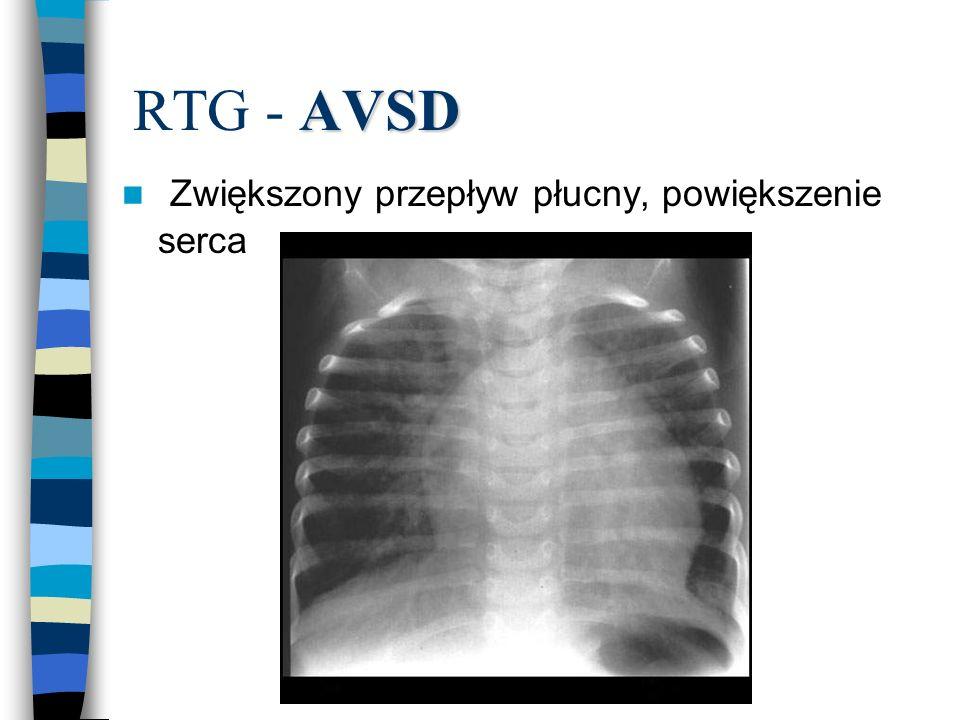 AVSD RTG - AVSD n Zwiększony przepływ płucny, powiększenie serca