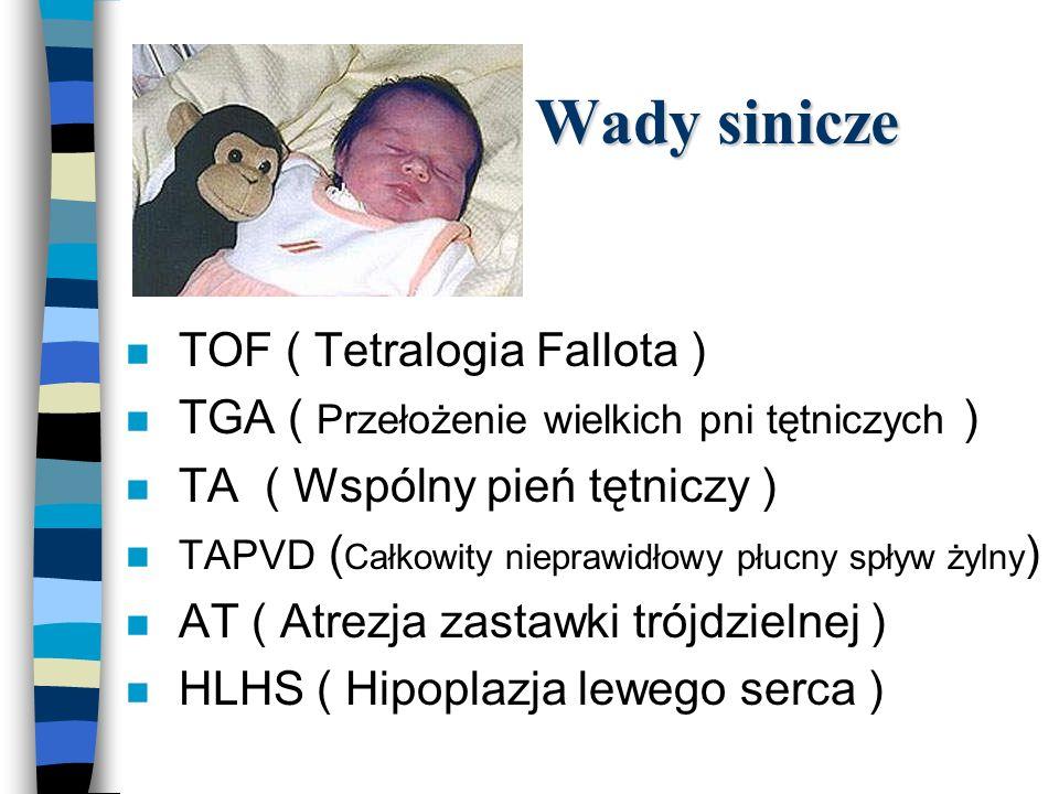 VSD Leczenie VSD n Chirurgiczne –wczesne, okres niemowlęcy n Wskazanie kardiochirurgiczne: –stosunek przepływu płucnego do systemowego powyżej 1,5 : 1 n Implanty przezcewnikowe