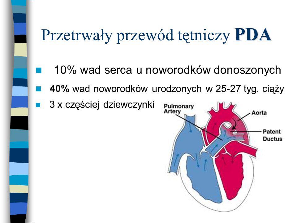 PDA Przetrwały przewód tętniczy PDA n 10% wad serca u noworodków donoszonych n 40% wad noworodków urodzonych w 25-27 tyg. ciąży n 3 x częściej dziewcz