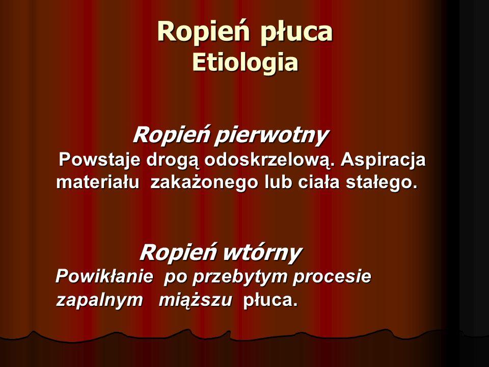 Ropień płuca Etiologia Ropień pierwotny Ropień pierwotny Powstaje drogą odoskrzelową. Aspiracja Powstaje drogą odoskrzelową. Aspiracja materiału zakaż