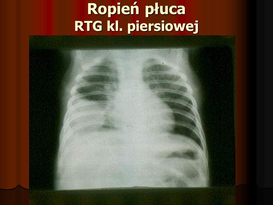 Ropień płuca RTG kl. piersiowej