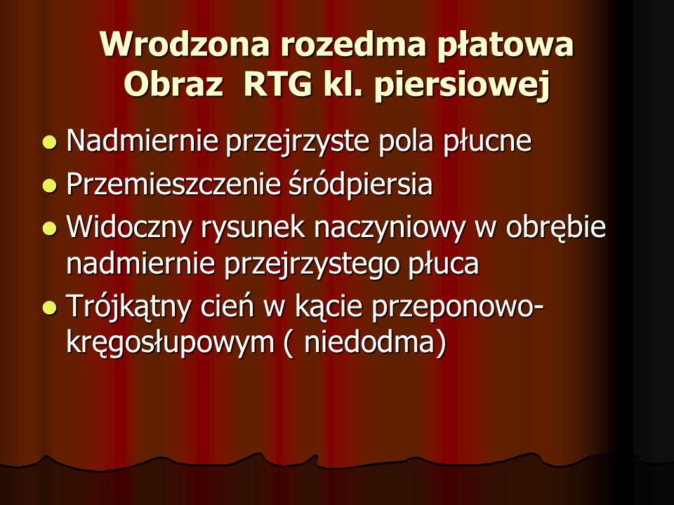 Wrodzona rozedma płatowa Obraz RTG kl.
