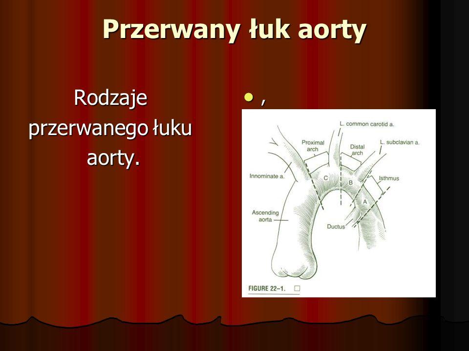 Przerwany łuk aorty Rodzaje Rodzaje przerwanego łuku aorty. aorty.,