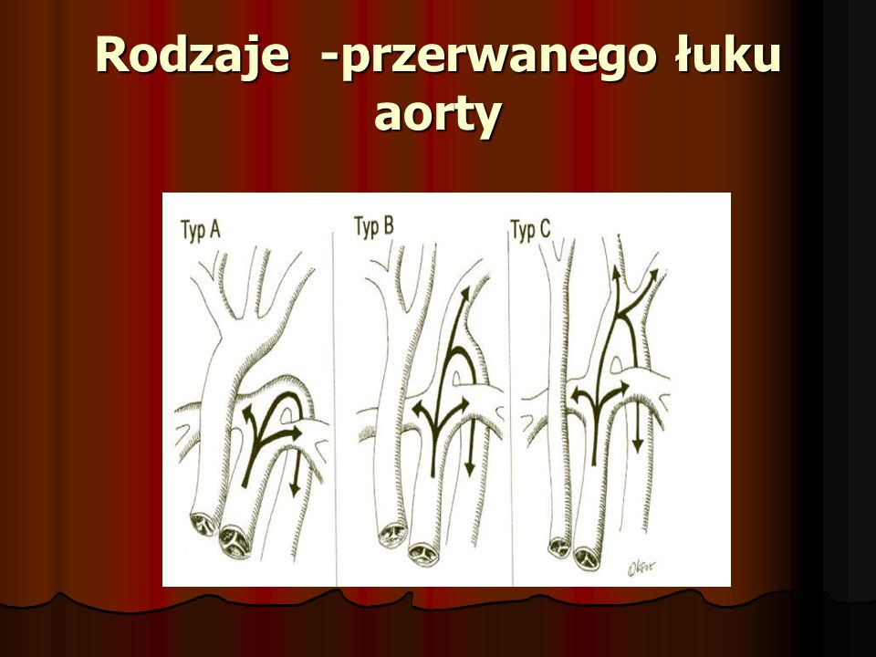 Rodzaje -przerwanego łuku aorty