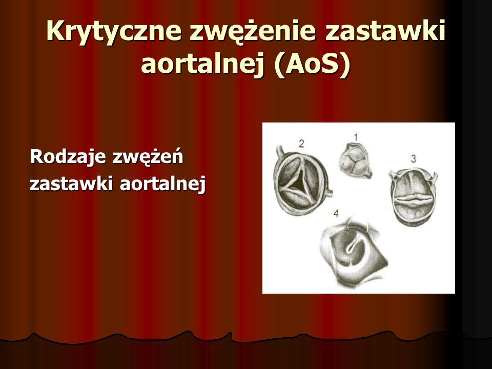 Krytyczne zwężenie zastawki aortalnej (AoS) Rodzaje zwężeń zastawki aortalnej