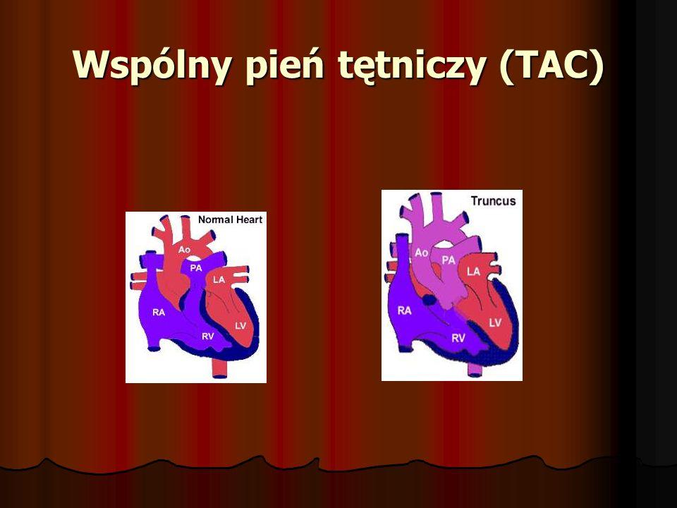 Wspólny pień tętniczy (TAC)