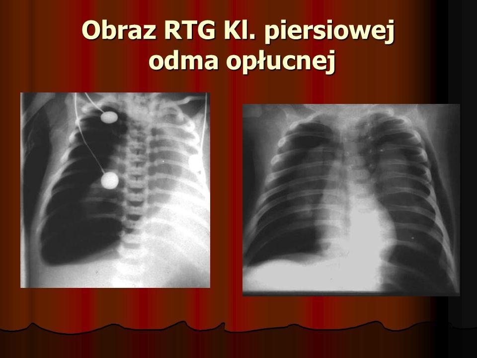 Ropień płuca Etiologia Ropień pierwotny Ropień pierwotny Powstaje drogą odoskrzelową.
