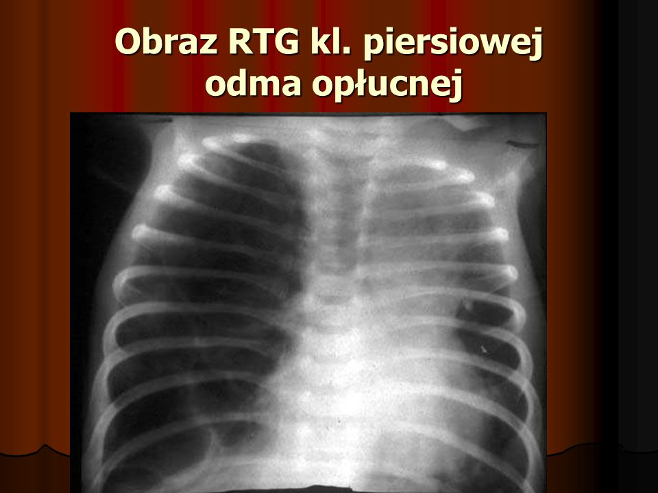 Odma opłucnowa – leczenie Drenaż jamy opłucnej Wprowadzamy dren przez 3 międzyżebrze w linii środkowo- obojczykowej po górnej krawędzi żebra ( tętnice międzyżebrowe!)